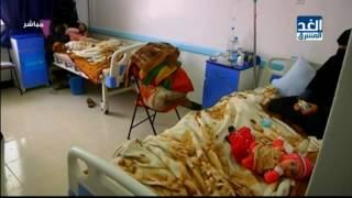 منظمة الصحة العالمية تؤكد ارتفاع أعداد الوفيات جراء الإصابة بمرض الكوليرا في اليمن إلى 51 حالة
