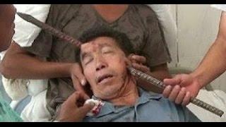 Repeat youtube video Barra de hierro le atraviesa la cabeza y vive de milagro