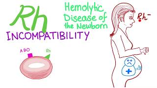 Rh incompatibility and Hemolytic disease of the newborn