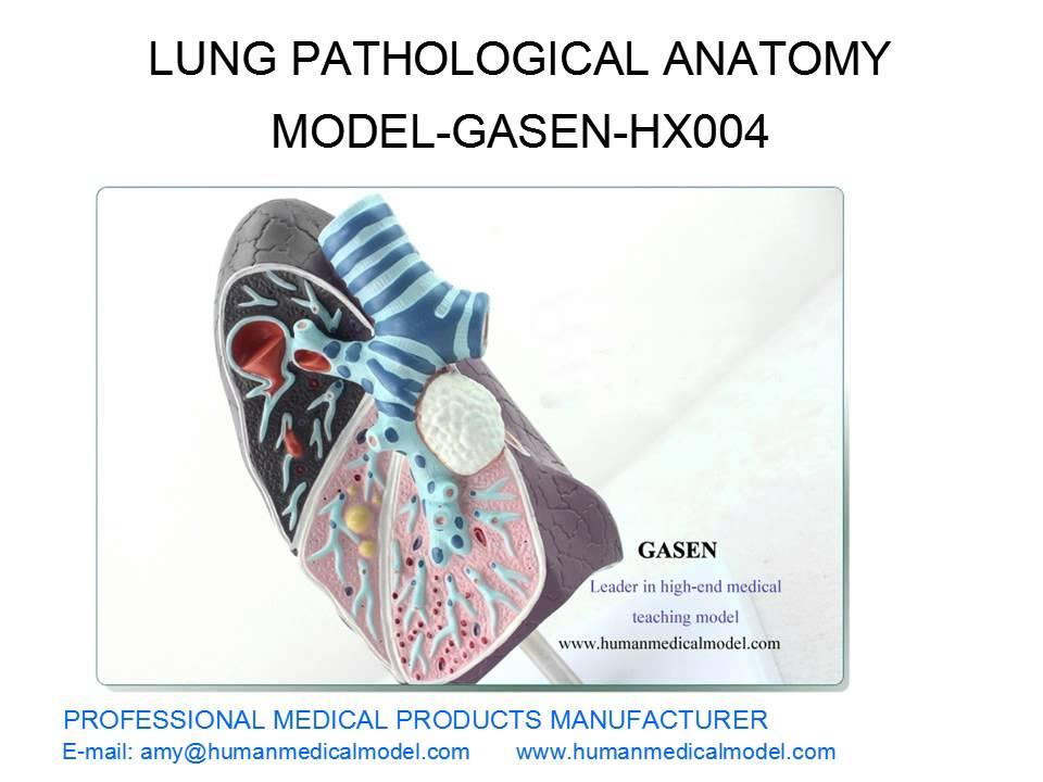 Smokers Tuberculosis Model Pneumonia Model Lung Pathological Anatomy