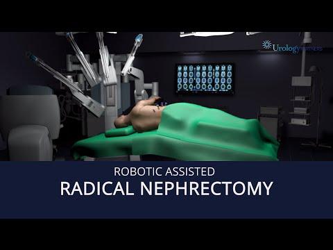 Robot Assisted Radical Nephrectomy