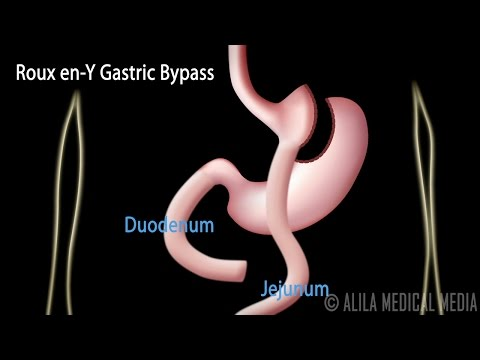 Roux en-Y Gastric Bypass, with Introduction on Body Mass Index, Animation.
