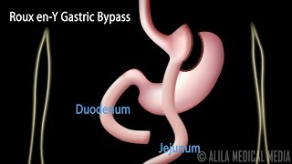 Roux en-Y Gastric Bypass, wİth Introduction on Body Mass Index, Animation.