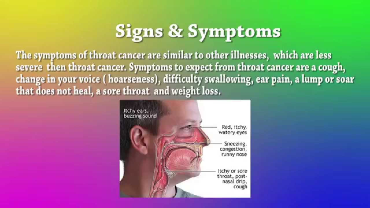 Throat Cancer Power Point Project For 8Th Grade By Kaylah -5664