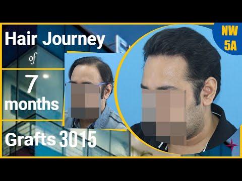 Hair Transplantation Result in 7 Months, Grade 5A  @Eugenix Hair Sciences by Drs Sethi & Bansal