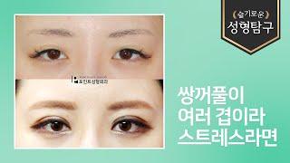 [성형기본지식] 여러겹쌍꺼풀 비절개눈매교정 수술전후사진