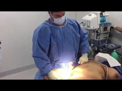 Inner Thigh Liposuction with Dr. Hughes in Los Angeles