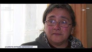 Mujer sufre enfermedad que la dejará con la mente en blanco LA MAÑANA
