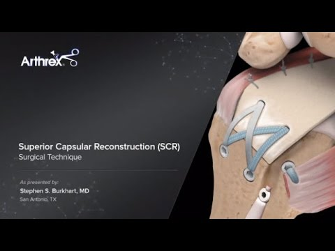 Superior Capsular Reconstruction Scr Youtube