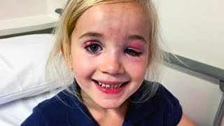 she-was-rushed-to-surgery-for-her-odd-smile-this-is-what-they-found
