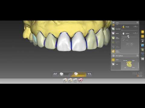 Digital Wax-up With Inlab 16