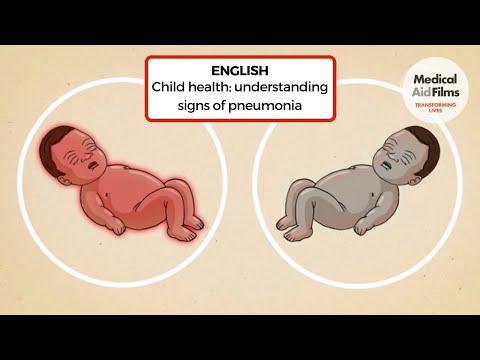 Child health: understanding signs of pneumonia