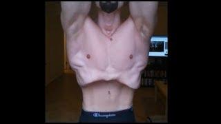 1 Jahr Magen-Vakuum-Transformation Ab