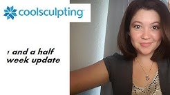 Week and a half after CoolSculpting