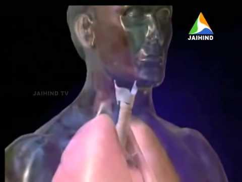 Sodium Deficiency, Morning News, 17 12 2014, Jaihind TV
