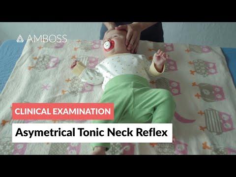 Asymmetrical Tonic Neck Reflex Clinical Examination