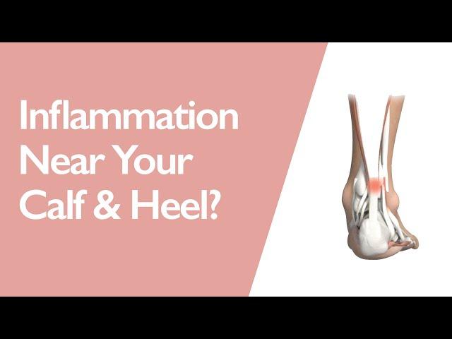 Achilles Tendonitis & Best Orthotics