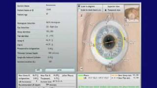 Astigmatism Correction - Cataract Surgery - Part 1