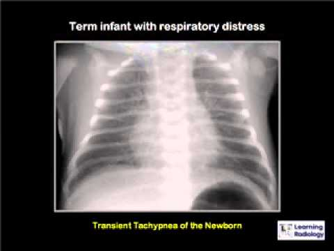 Podcast 18 Newborn Lung Diseases thumbnail