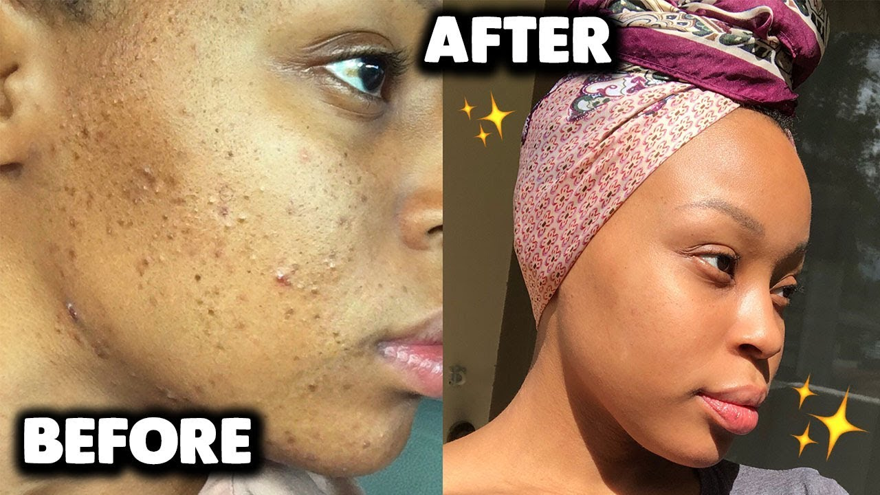 Affordable Skincare Routine For Acne Dark Marks Hyperpigmentation Youtube