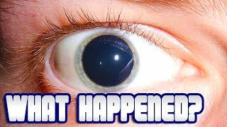 Patient with BLOWN PUPIL!  What Happened?