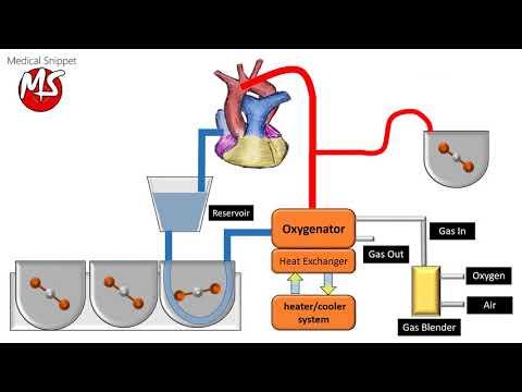 Cardiopulmonary bypass (CPB) circuit