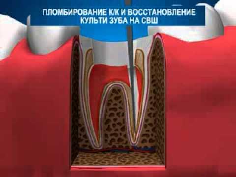 фото штифт на зуб