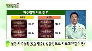 [서울탑치과병원] 건강스페셜 - 치주질환 치료 전 후