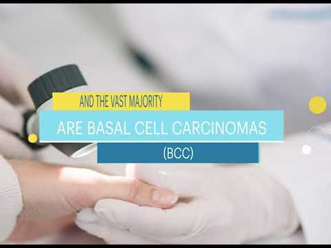 Basal Cell Carcinoma Facts