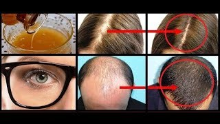 Video YOUR HAIR WILL GROW LIKE CRAZY AND YOU'LL HAVE EAGLE EYESIGHT EAT 3 TABLESPOONS A DAY download MP3, 3GP, MP4, WEBM, AVI, FLV Maret 2018