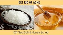 hqdefault - Honey Sea Salt Scrub Acne
