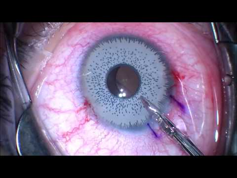 Want to change your eye color? Think twice.. Iris Implant Removal! J.T. Kavanagh MD. San Antonio, TX