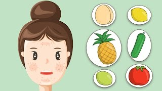 6 Home Remedies to Get Rid of Oily Skin