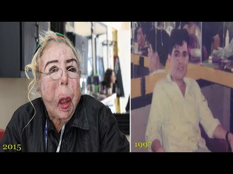 Homemade Cosmetic Surgery : Mexican man horribly disfigured after injecting oil into FACE