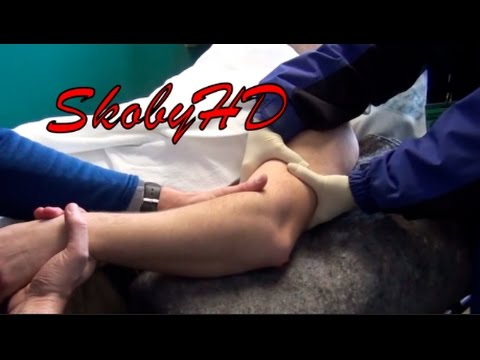 NASTY (part 2) Joint Crack compilation!- Dislocated Shoulder Hip Elbow Knee ALL INCLUDED!