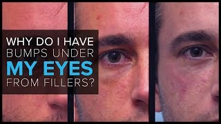 """FAQ: """"Why do I have bumps under my eyes after receiving fillers?"""""""