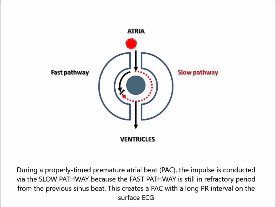 AV Nodal Reentry Tachycardia (AVNRT) for non-cardiologist in less