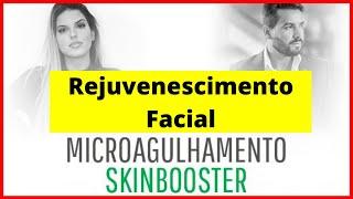 Rejuvenescimento Facial / Esteticista Curso Microagulhamento SKINBOOSTER Estética