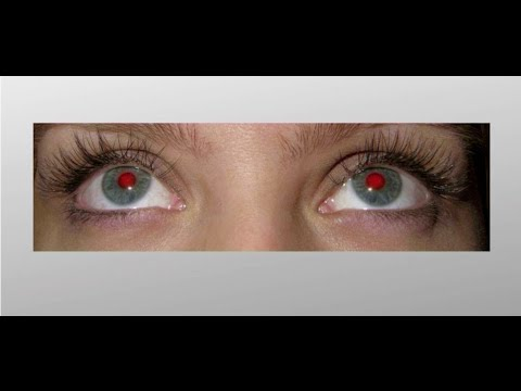 Почему краснеют глаза: причины явления