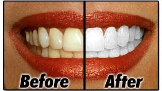 how to natural white teeth at home