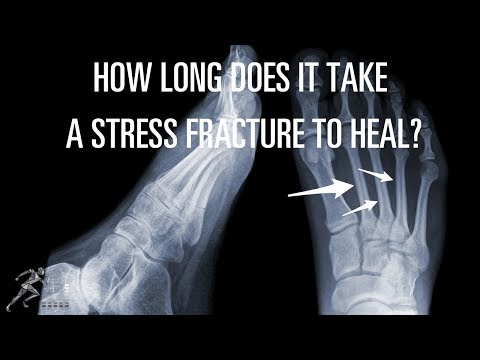 Time for healing of a stress fracture