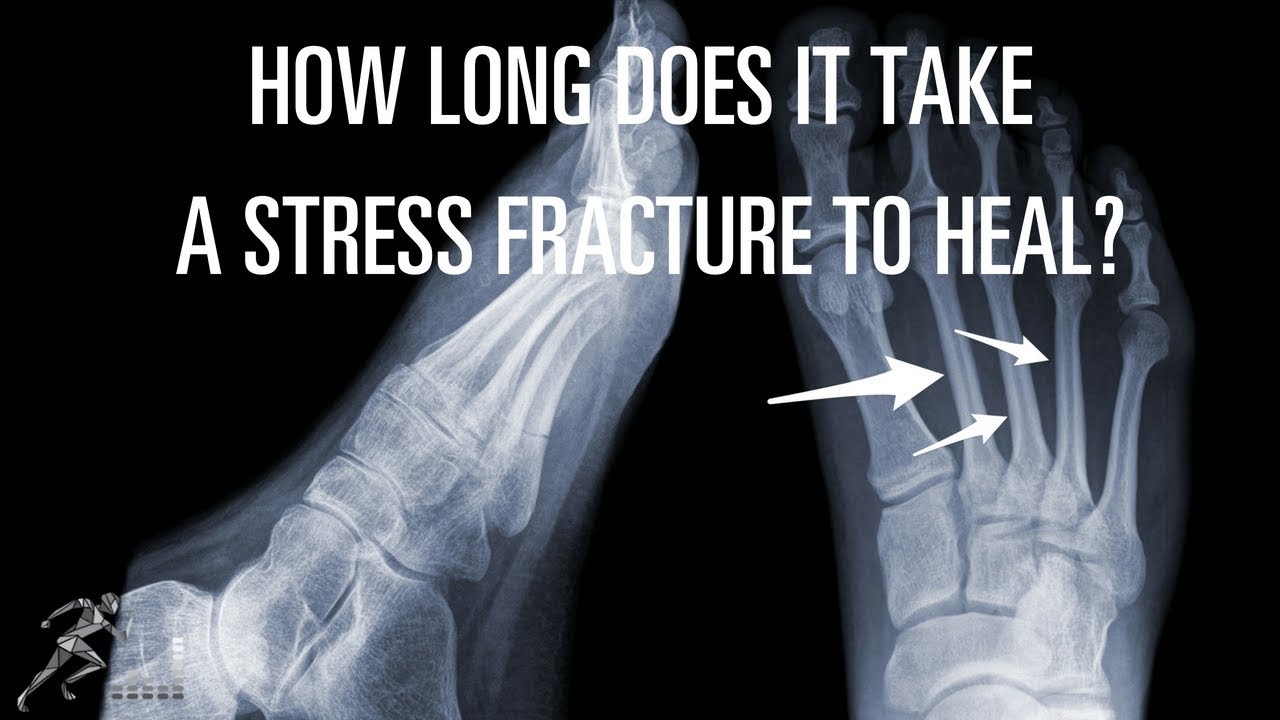 Can A Tibial Stress Fracture Heal Without Surgery Youtube