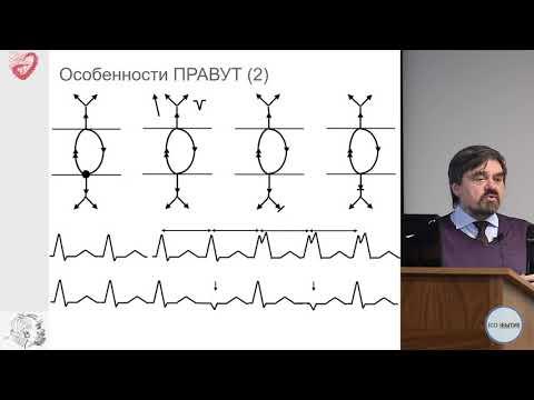 Дифференциальная диагностика регулярных тахикардий