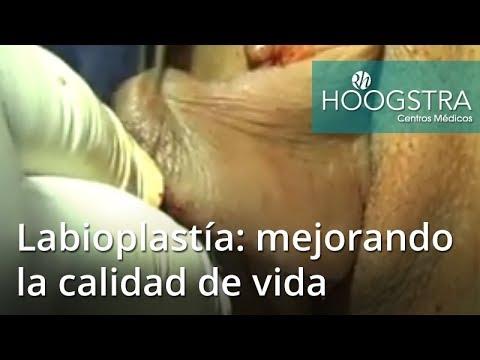 Labioplastía: mejorando la calidad de vida (18203)