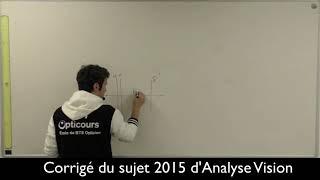 BTS OL TS2 AV Corrige du sujet d&#39analyse de la vision 2015