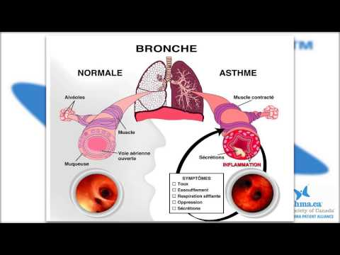 Asthma Canada Patient Education - Severe Asthma and Biologic Treatments