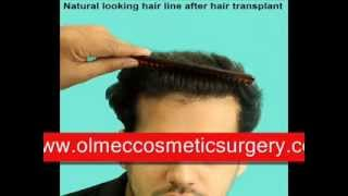 Successful Hair Transplant Olmec - Hair Regrowth Surgery in Delhi India Thumbnail