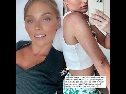 Irina Baeva sufre accidente montando a caballo