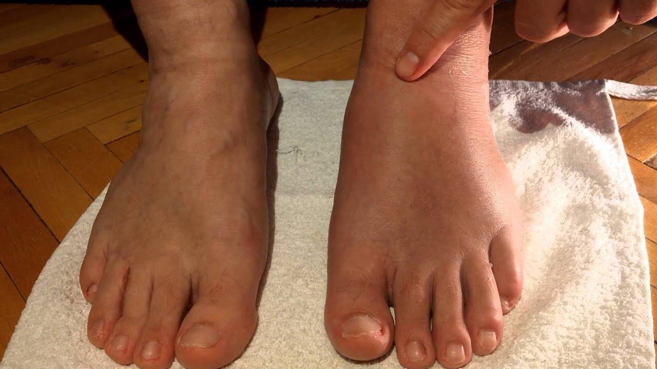 Растяжение голиностопного сустава брусника лечение суставов