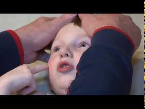 ДЦП – что это за диагноз. / Ребенок до года / Статьи по темам
